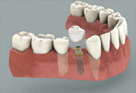 Implant With a Crown