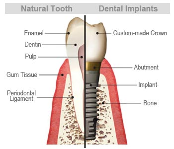 Natural Tooth vs. Implant
