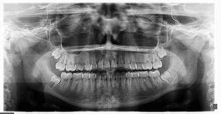 Panoramic X-ray (Adult)